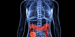 Colon Cancer Treatment in Israel