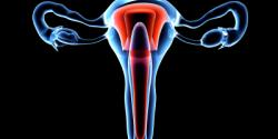Ovarian Cancer Treatment in Israel